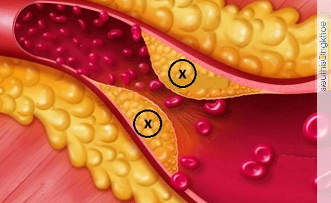 thực phẩm tốt cho người bệnh tim
